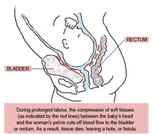 obstetric-fistula